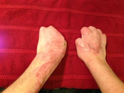both hands. back.